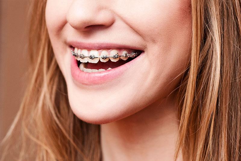 Orthodontics in Blacksburg