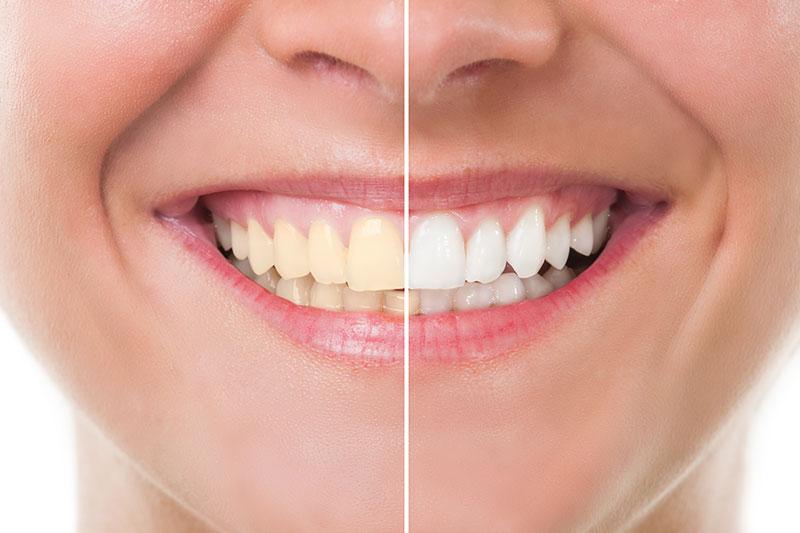 Teeth Whitening in Blacksburg